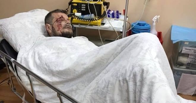 в следствии взрыва пострадал игорь мосейчук