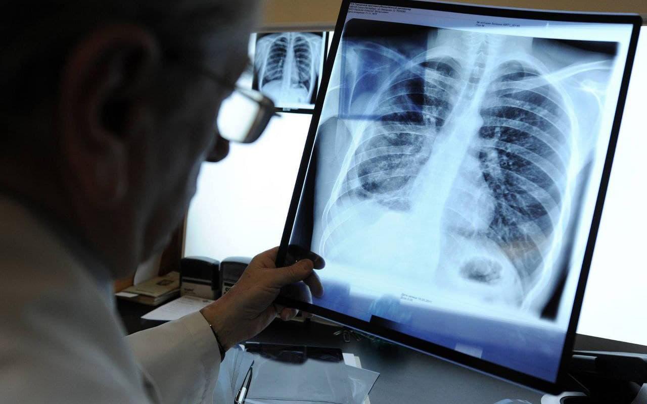 Вчені створили нейромережу, яка розпізнає рак легенів